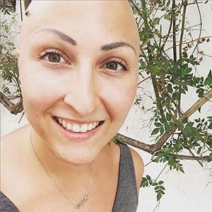 Жизнь с алопецией:  Я потеряла волосы,  но обрела веру в себя