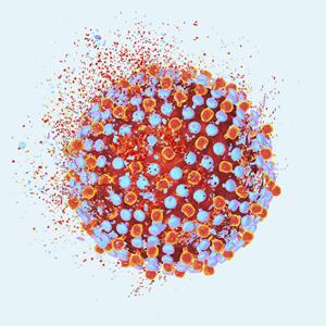 Ласковый убийца: Откуда берётся гепатит и как его вылечить — Здоровье на Wonderzine