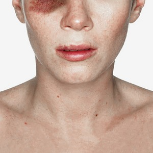 Юристка Дарья Лопашенко  о сексуальном насилии  и самообороне