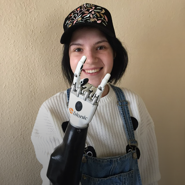 «Протез — это круто,  но это не рука»: Маргарита Грачёва  о жизни после нападения