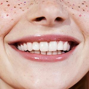 Шелушатся и сохнут: Как ухаживать за губами