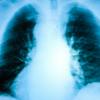 Главный онколог Минздрава заявил о росте заболеваемости раком