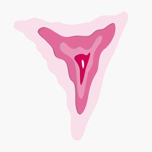 Калечащие операции: 6 вопросов о клиторэктомии