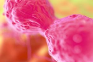 В США врачи вылечили рак груди в терминальной стадии