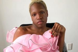 Модель с инвалидностью попала в список самых влиятельных людей мира моды