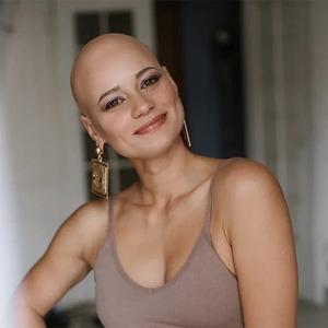 «Я — настоящая без парика»: Истории женщин, которые живут с алопецией