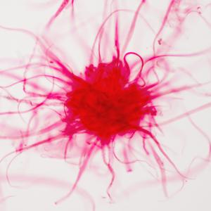 Лекарство от рака: Что приходит на смену химиотерапии