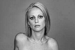 Победившая рак австралийка показала все шрамы