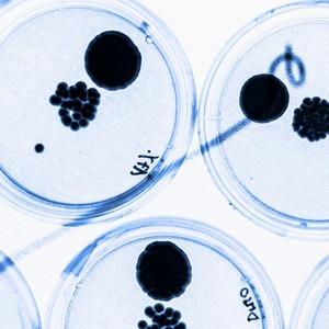 «Вирус Х»: Какие эпидемии угрожают человечеству