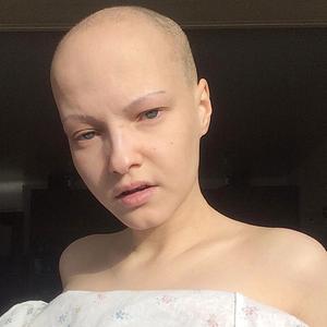 «Выложила пост с грудью, которой нет»: Катерина Адамс о работе моделью наперекор стандартам