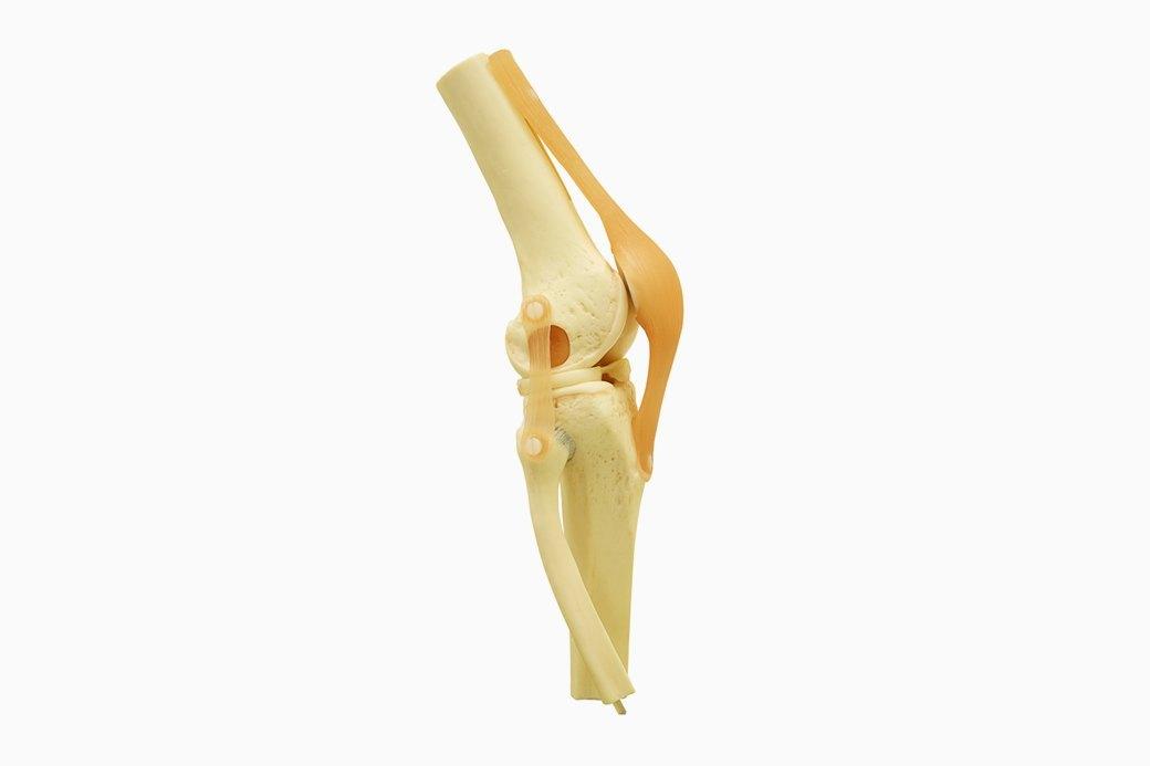 Милые кости: Как избежать переломов. Изображение № 2.