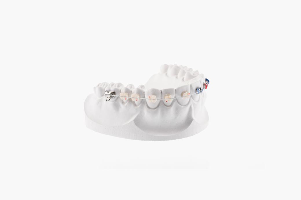 Кариес, брекеты и жёлтая эмаль: 10 мифов о здоровье зубов. Изображение № 3.