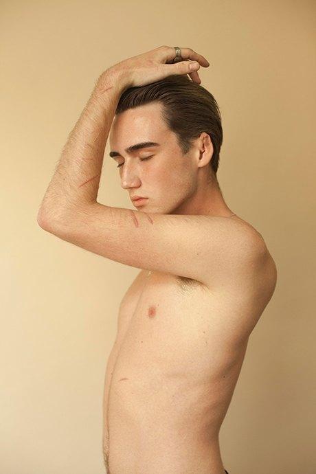 «Шрамы»: Портреты людей, чьи тела изменились навсегда. Изображение № 12.