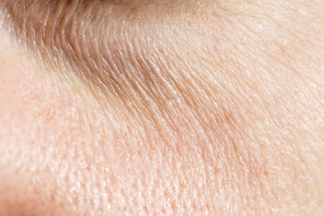 Нормальный процесс: Как меняется кожа и откуда берутся морщины. Изображение № 1.