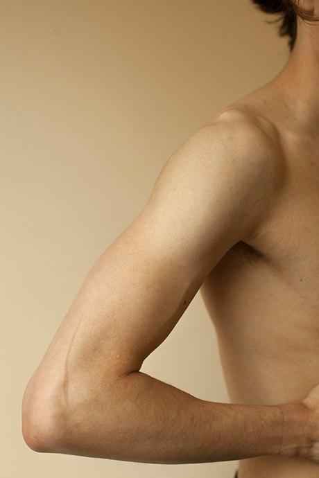 «Шрамы»: Портреты людей, чьи тела изменились навсегда. Изображение № 8.