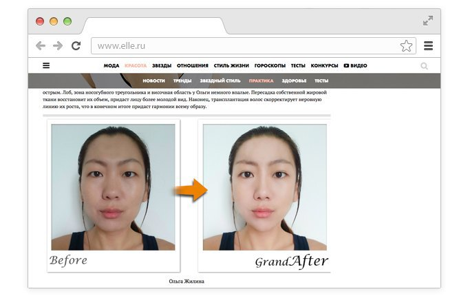 Корейский хирург смоделировал «идеальные» лица редакторов Elle. Изображение № 5.
