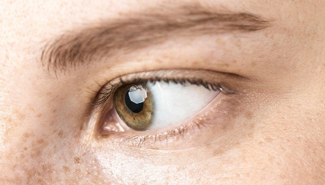 Глаз неоторвать: Девушки о проблемах со зрением. Изображение № 9.