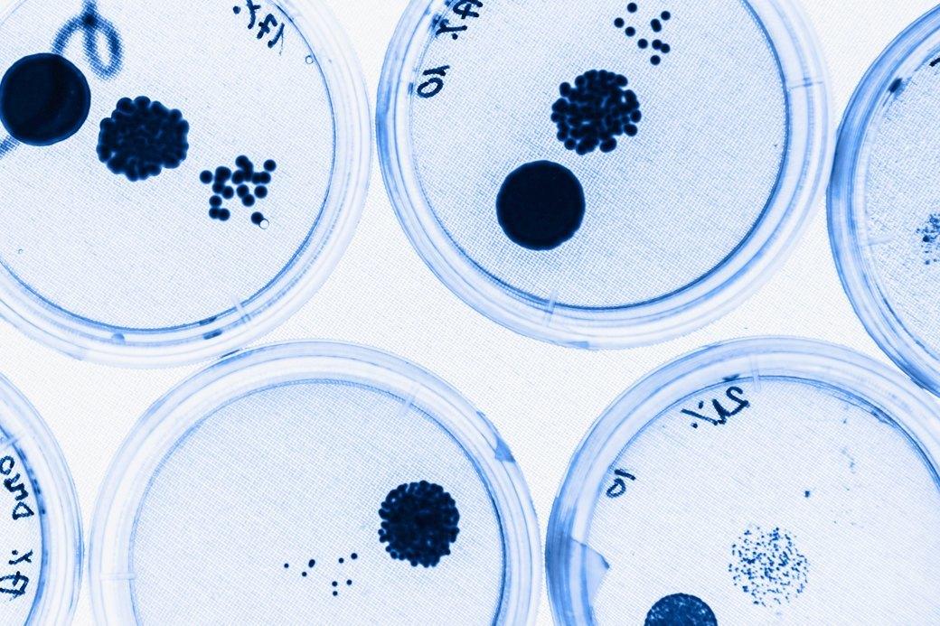 «Вирус Х»: Какие эпидемииугрожают человечеству. Изображение № 2.