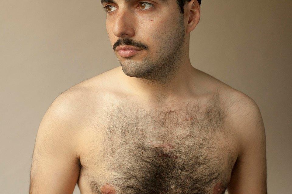 «Шрамы»: Портреты людей, чьи тела изменились навсегда. Изображение № 6.