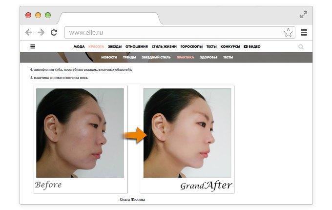 Корейский хирург смоделировал «идеальные» лица редакторов Elle. Изображение № 6.