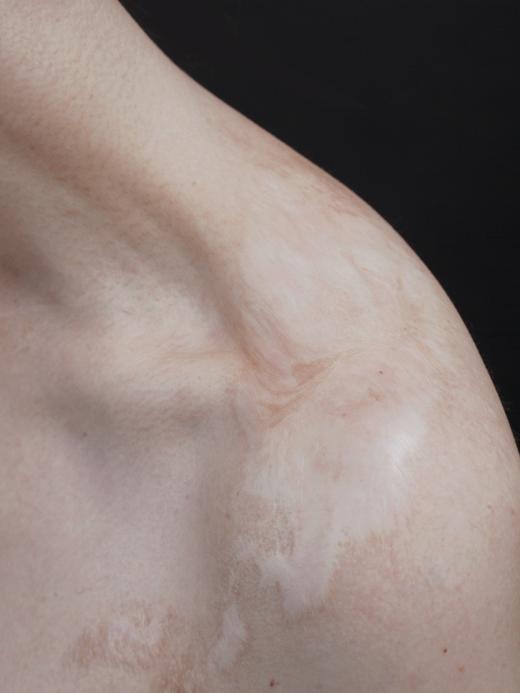 Жизнь со шрамом: Семь историй, оставшихся на теле. Изображение № 11.
