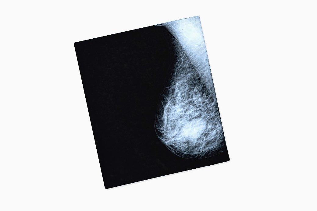 Что нужно знать о раке груди: От факторов риска до профилактики. Изображение № 1.