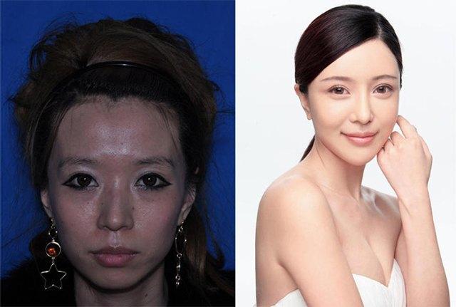 Стандарты красоты: китаянки после пластики. Изображение № 2.