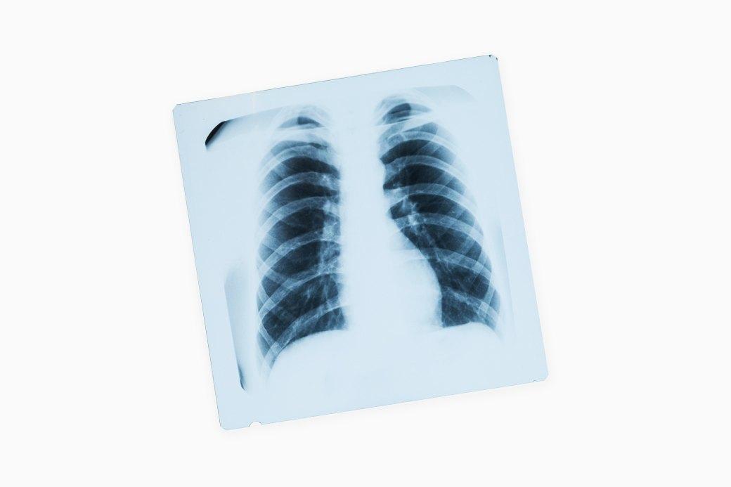 Туберкулёз в России:  Болезнь, о которой  не говорят. Изображение № 1.