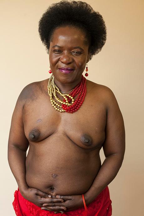 «Шрамы»: Портреты людей, чьи тела изменились навсегда. Изображение № 11.
