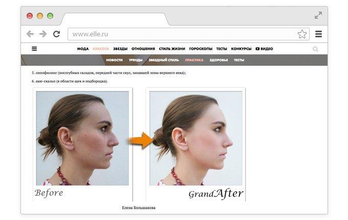 Корейский хирург смоделировал «идеальные» лица редакторов Elle. Изображение № 4.